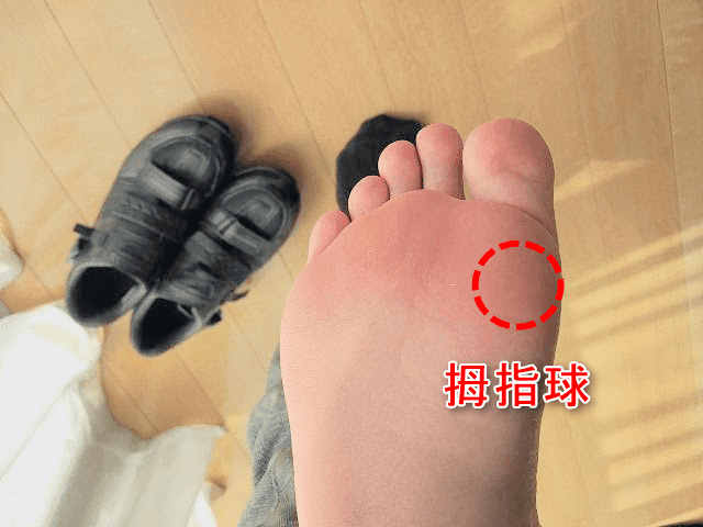 拇指球の位置