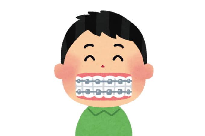 歯の矯正器具のイラスト