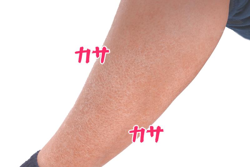 カサカサで白くなった乾燥肌の足