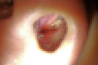 アルゴンプラズマ治療後の鼻の粘膜モザイク